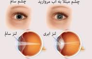 راههای تشخیص و درمان آب مروارید چشم